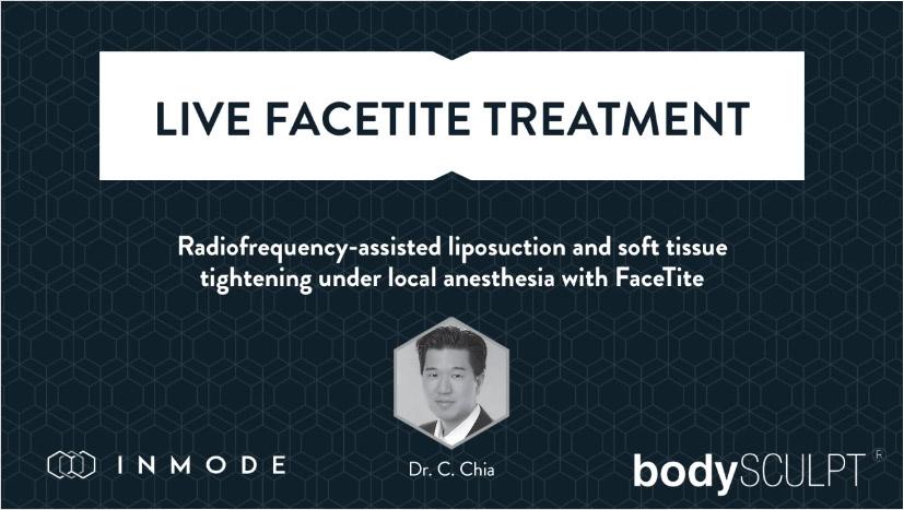 Live Facetite Treatment