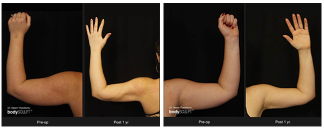 arm lift surgery before after