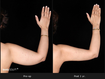 Scarless Arm Lift Surgery - The Latest Advancement in Brachioplasty