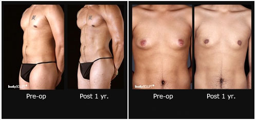 Options To Reduce Male Breast Enlargement