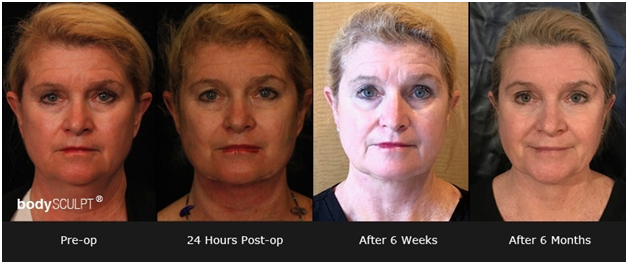 Facelift: What to Expect from the Procedure