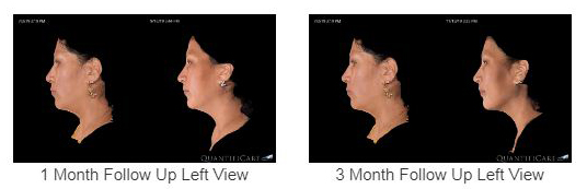 Noninvasive Technology for Facial Remodeling