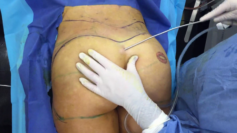 Brazilian Butt Lift Surgery Video | BBL under Local Anesthesia