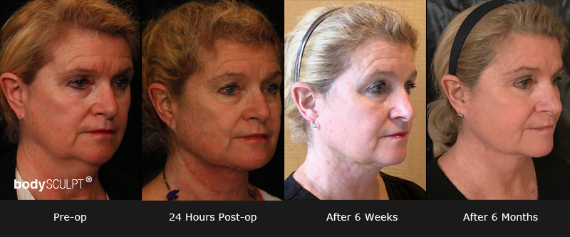EmbraceRF – Before and Photos | bodySCULPT