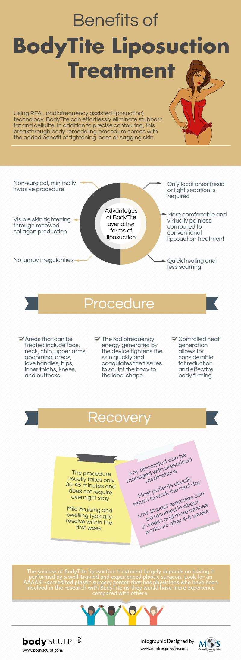 Benefits of BodyTite Liposuction Treatment