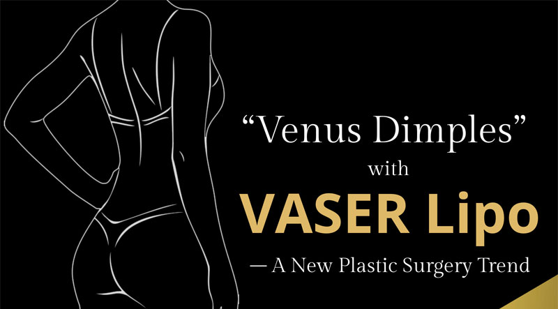 """Venus Dimples"" with VASER Lipo – A New Plastic Surgery Trend"