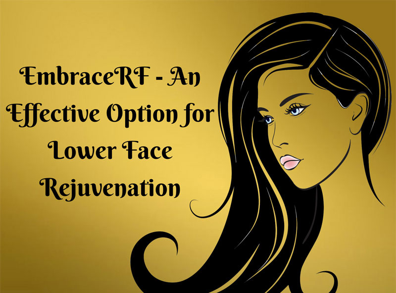 EmbraceRF - An Effective Option for Lower Face Rejuvenation [infographic]