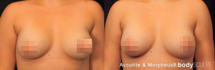 Axillary Fat Removal Using AccuTite