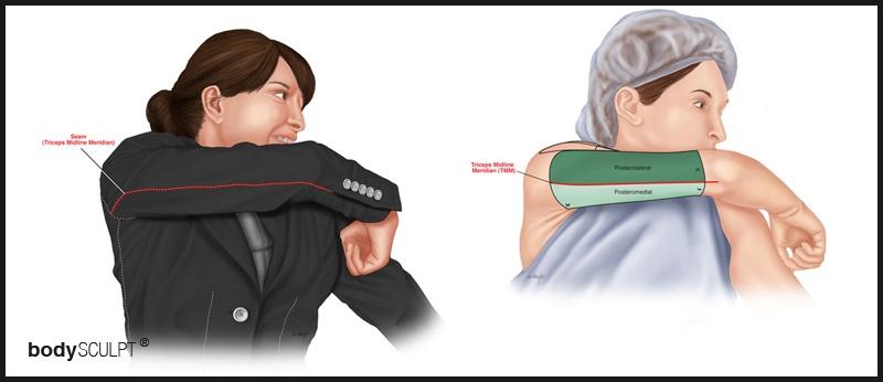 Triceps Midline Meridien (TMM)