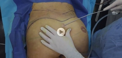Brazilian Butt Lift Surgery Video: Patient 2