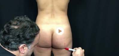 Brazilian Butt Lift Surgery Video: Patient 4