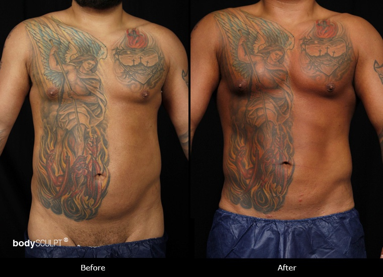 SmartLipo Love Handles (Men) - Before and After Photos
