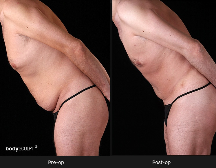 Tummy Tuck Men