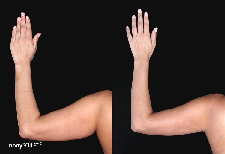 Arm Liposuction Before & After Photos