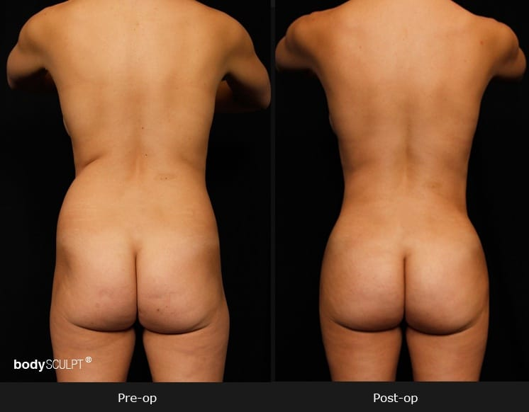 Brazilian Butt Lift - Before and After Photos