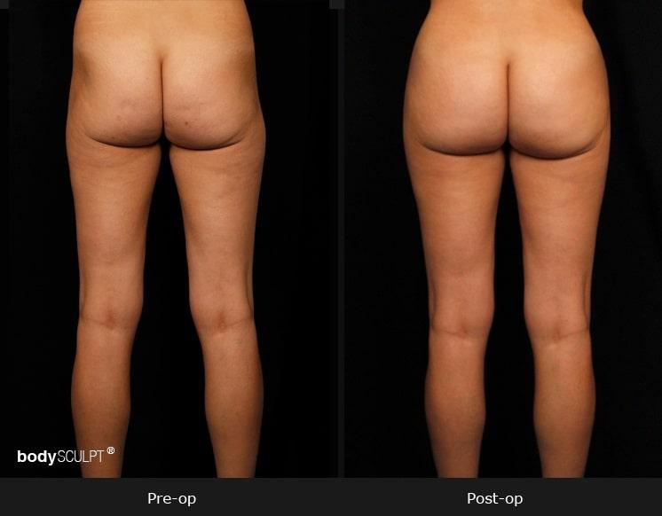 Brazilian Butt Lift - Patient 1
