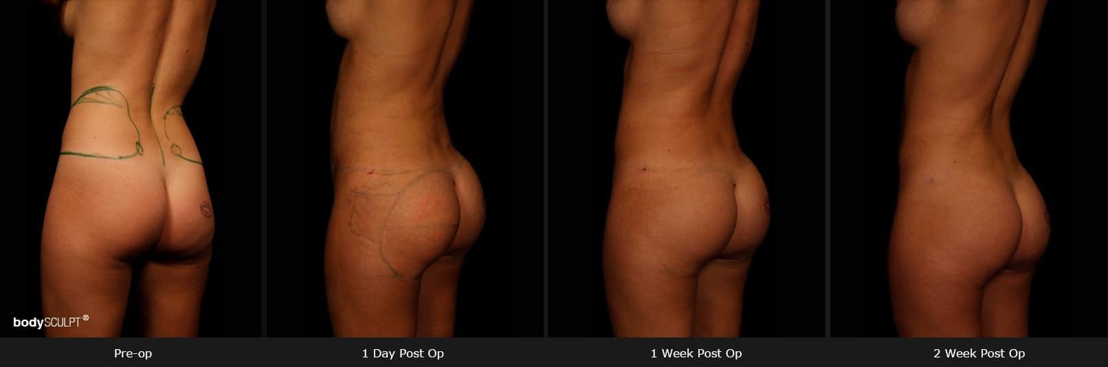 Brazilian Butt Lift - Patient 3