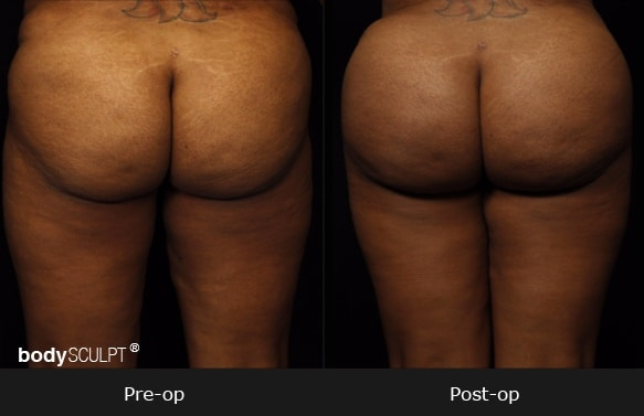 Brazilian Butt Lift - Patient 4