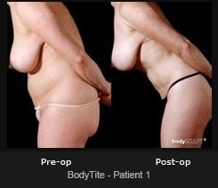 BodyTite - Patient 1