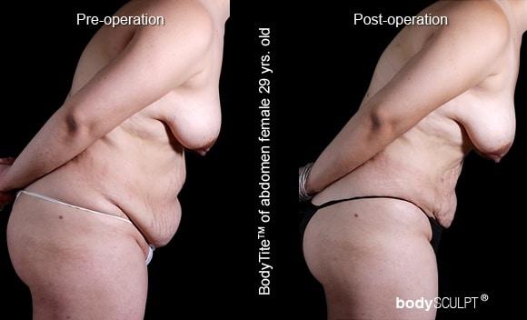 BodyTite - Patient 2