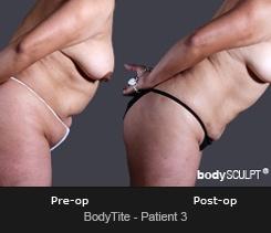 BodyTite - Patient 3