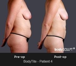 BodyTite - Patient 4