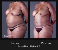 BodyTite - Patient 5