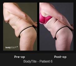 BodyTite - Patient 6