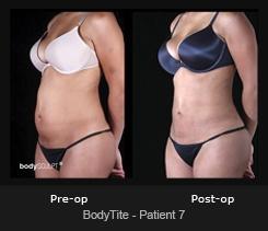 BodyTite - Patient 7