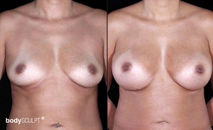 Breast Augmentation - Before and After Photos