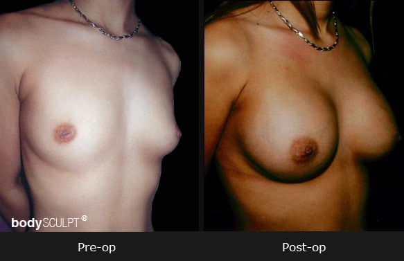 Breast Augmentation - Patient 3