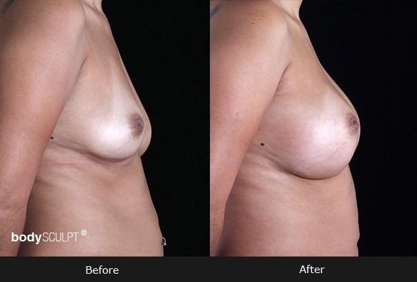Breast Augmentation - Patient 1