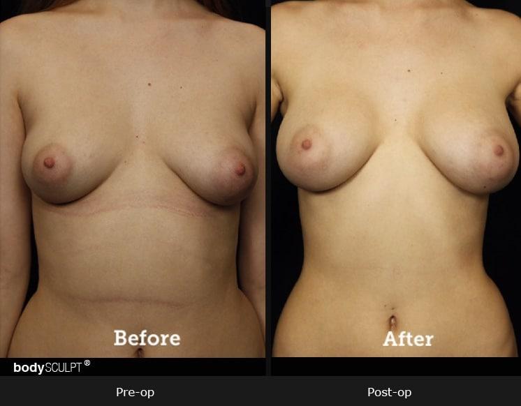 Breast Augmentation - Patient 2