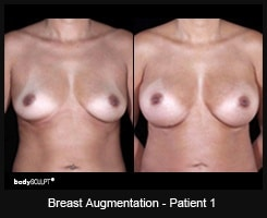 Breast Augmentation - Before & After Photos