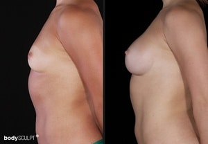 Composite Breast Augmentation - Before and After Photos