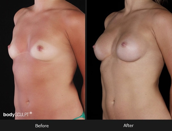 Composite Breast Augmentation - Patient 2