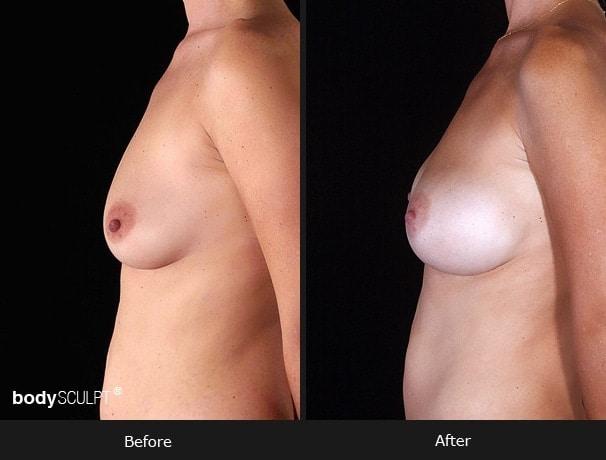 Composite Breast Augmentation - Patient 3