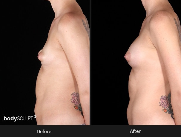 Composite Breast Augmentation - Patient 4
