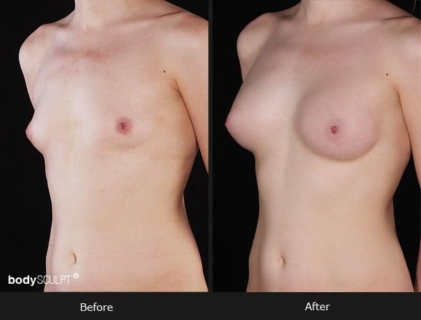 Composite Breast Augmentation - Patient 5