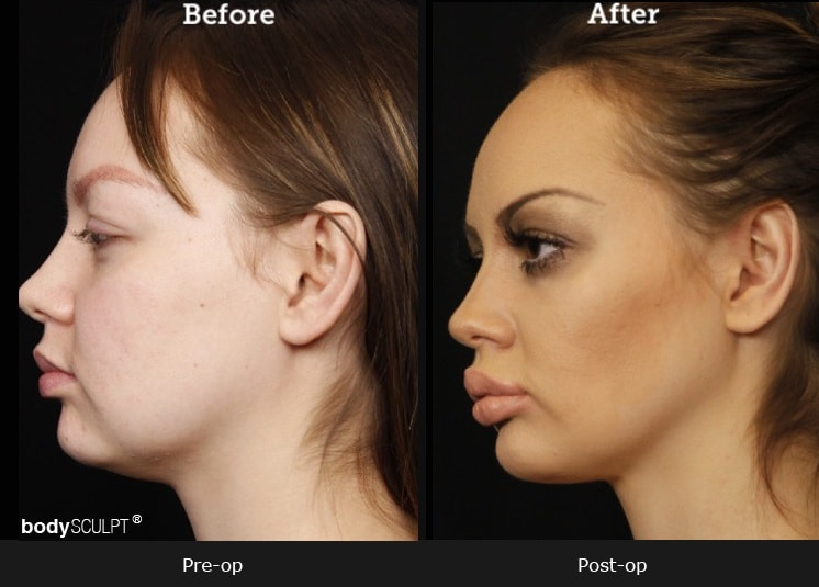 Chin Implant - Before & After Photos