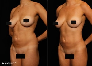 Hi Def Liposuction - Before and After Photos