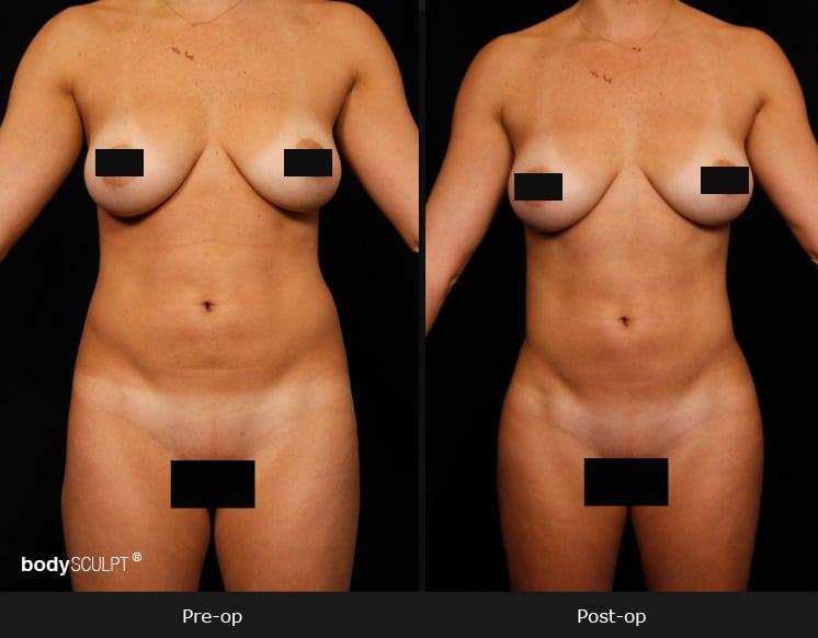 Female Hi Def Liposuction