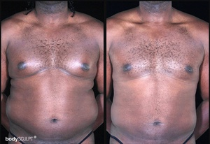 Gynecomastia - Before and After Photos