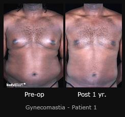 Gynecomastia - Patient 1