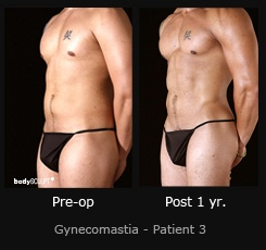 Gynecomastia - Patient 3