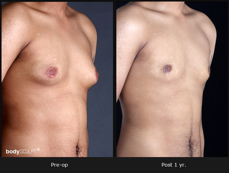 Gynecomastia - Patient 2