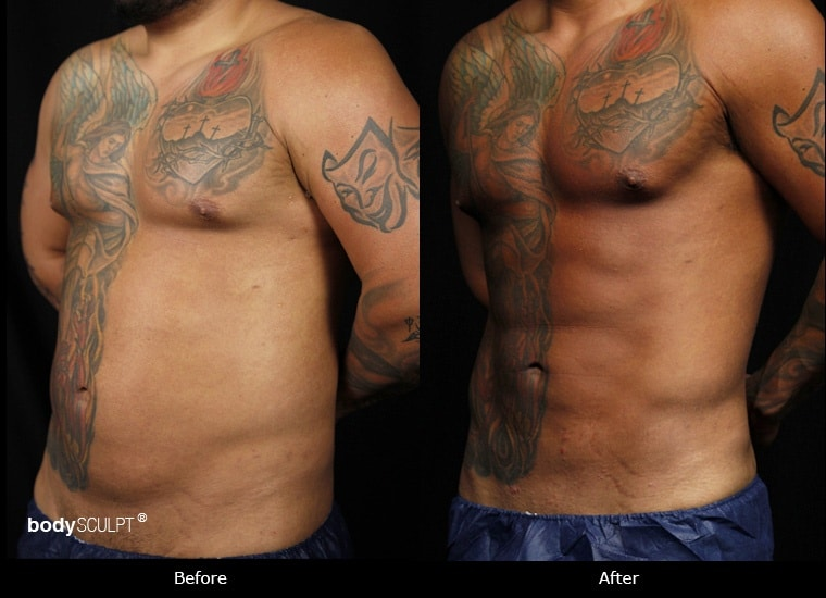 SmartLipo Love Handles - Before & After Photos