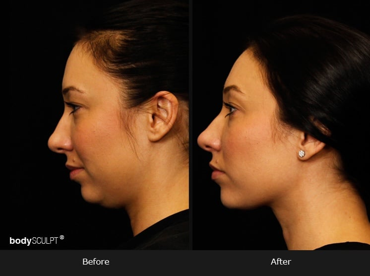 Kybella - Before & After Photos