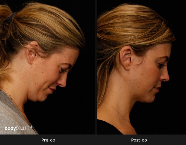 SmartLipo Neck Liposuction - Patient 1 Before & After Photos