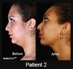 SmartLipo Neck Liposuction - Patient 1